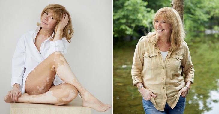 Chantal Lacroix se dévoile dans une nouvelle photo où elle assume son vitiligo et elle est rayonnante